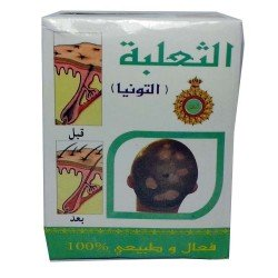 Cream for Alopecia Areata