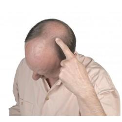 Huiles anti-chute des cheveux
